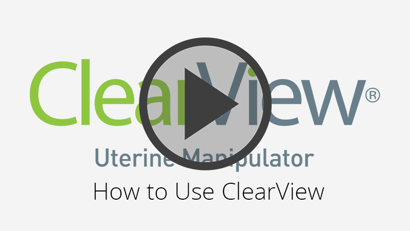 ClearView Uterine Manipulator - How to Use ClearView - Video