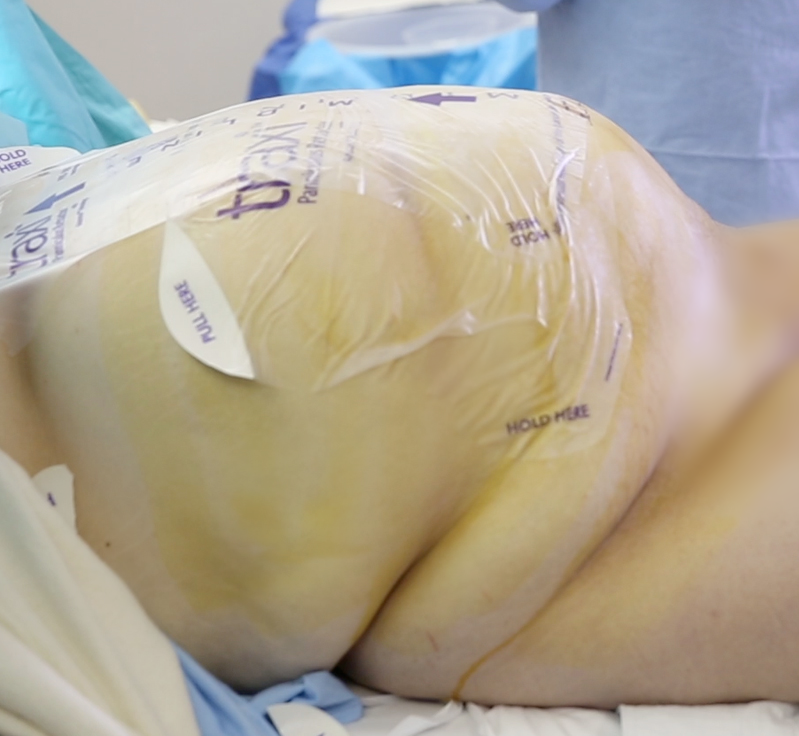 traxi - Photo of traxi on Patient