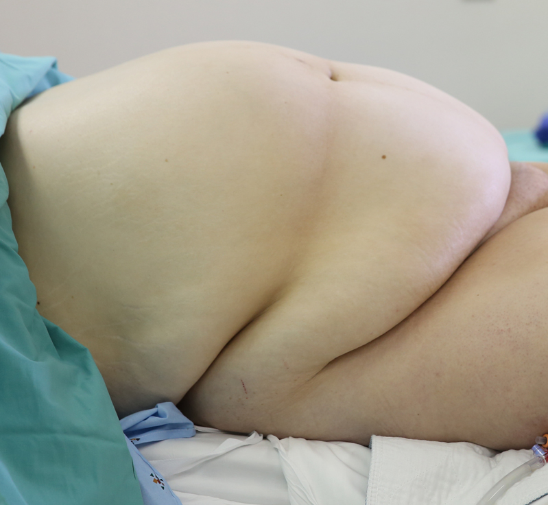 Patient Panniculus Without traxi