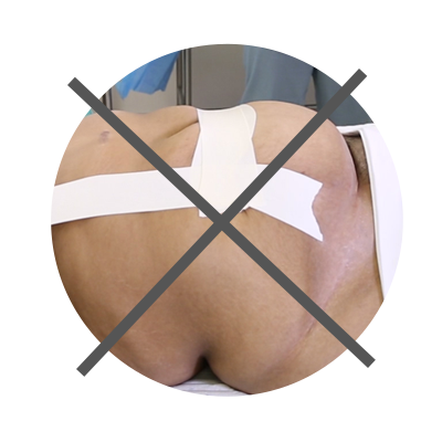 Use the traxi Panniculus Retractor Instead of Tape