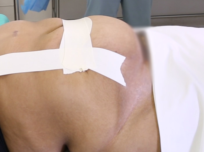 traxi - Photo of Patient with Tape