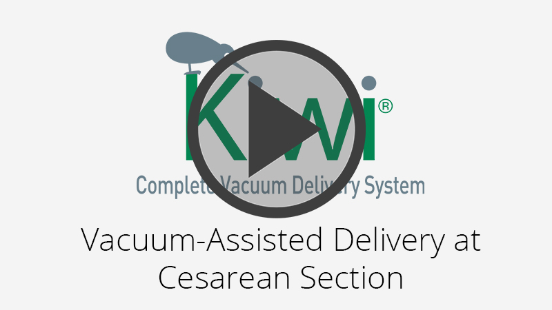 Kiwi Vacuum-Assisted Delivery at Cesarean Section Video