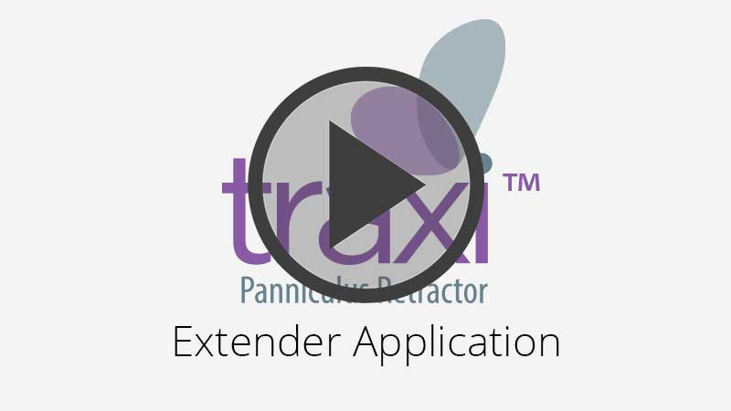 traxi Panniculus Retractor Extender Application