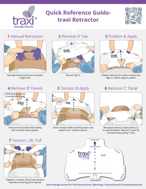 traxi Panniculus Retractor Quick Reference Guide