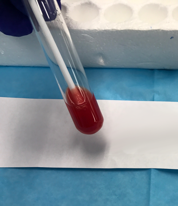 Vial with Blood Image - ROM Plus Rupture of Membranes Test
